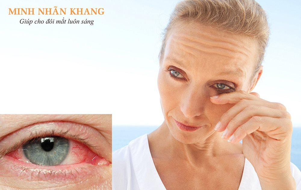 Viêm giác mạc – 8 điều cần nắm rõ để bảo vệ đôi mắt